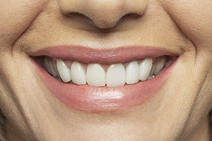 Closeup of beautifully repaired smile