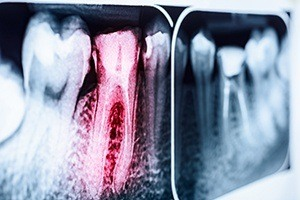 X-ray of root canal treated teeth