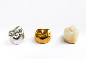 Ceramic, gold and silver dental crowns.