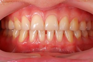 A picture of healthy gums.