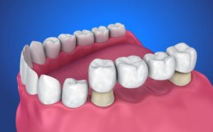 graphic showing typical dental bridge