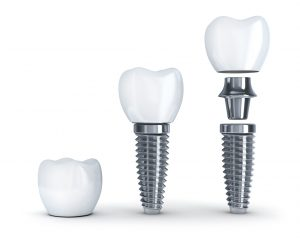 Implants from your dentist in West Monroe can secure dentures