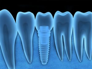 Wondering how you can get the most of your dental implants? Schedule a consultation with your premier dentist in West Monroe, Dr. L. King Scott.