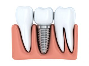 Emplaced dental Implant